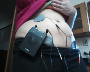 Using the TENS Machine for Pelvic Pain